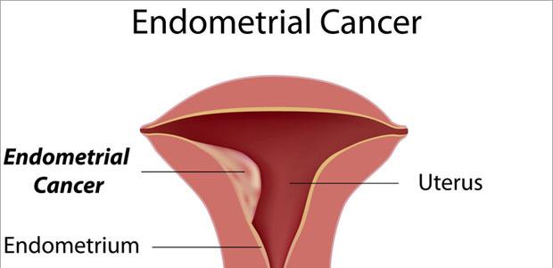 endometrial cancer is papiloma humano contagio y prevencion