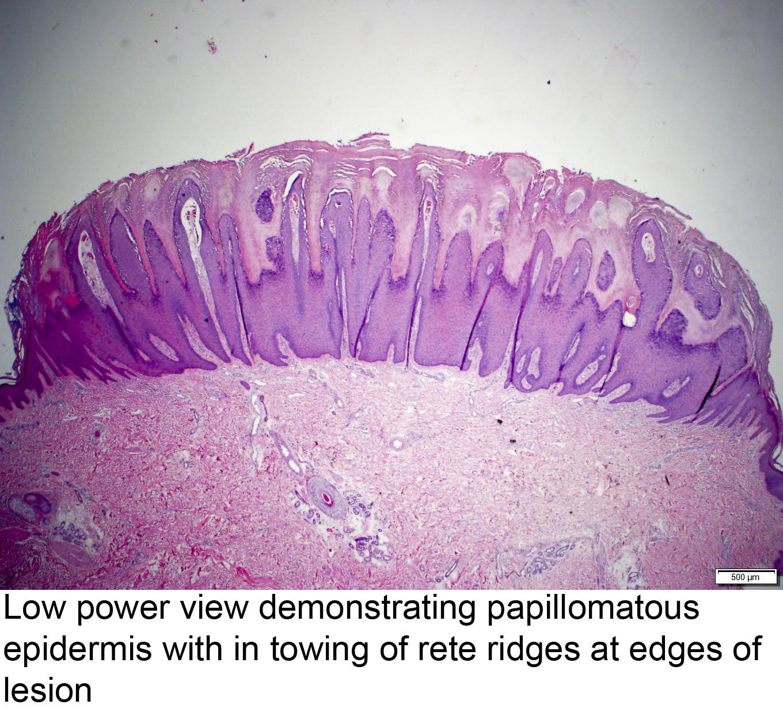 papilloma skin pathology outlines papillomavirus contamination