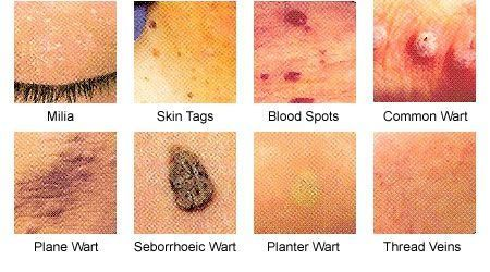 hpv warts on face plasturi detoxifianti kinoki
