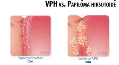 papiloma hirsutoide bacterii 5 secunde