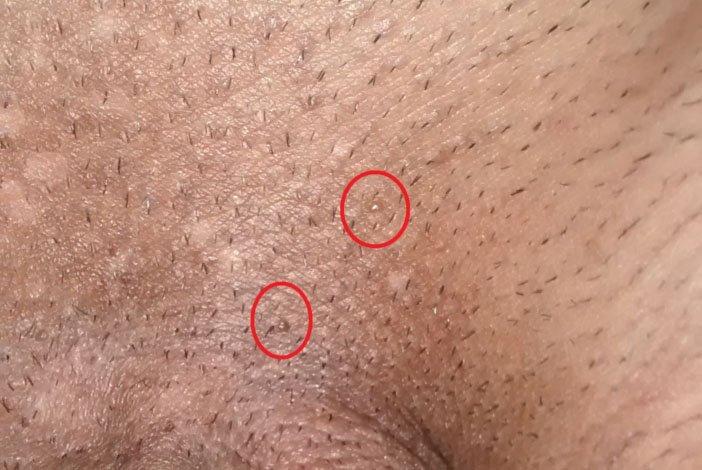 papilloma follicolare tiroide eliminarea viermilor intestinali
