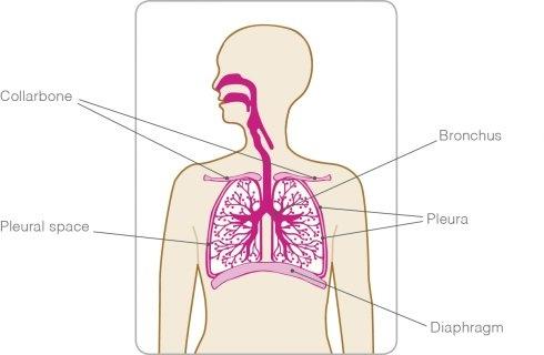 a invins cancerul ovarian vaccino hpv quante dosi
