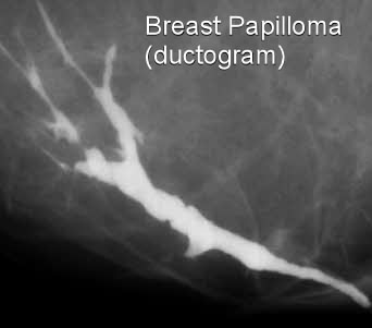 intraductal papilloma pain
