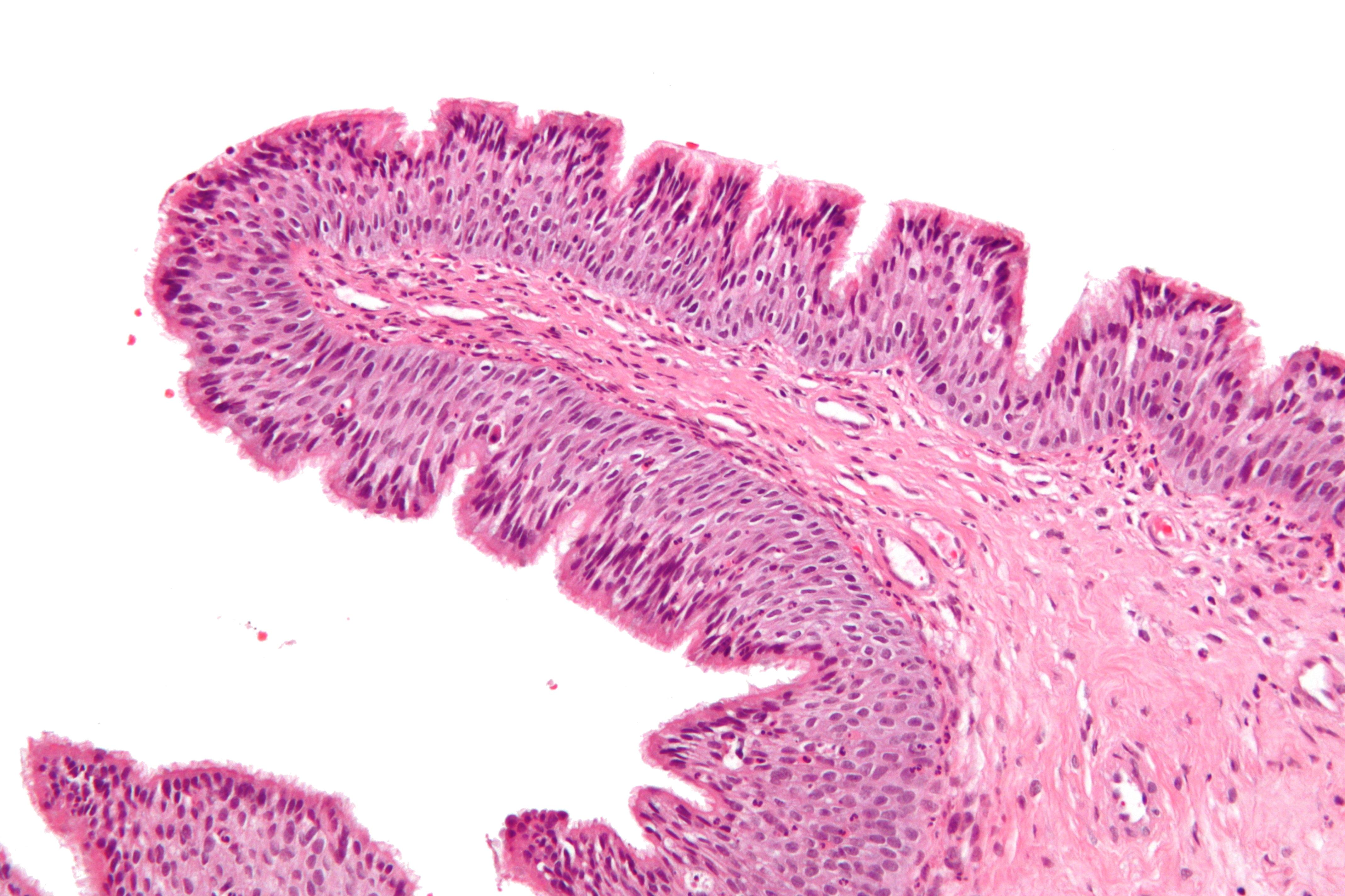 papilloma nasal polyposis human papillomavirus symptoms female