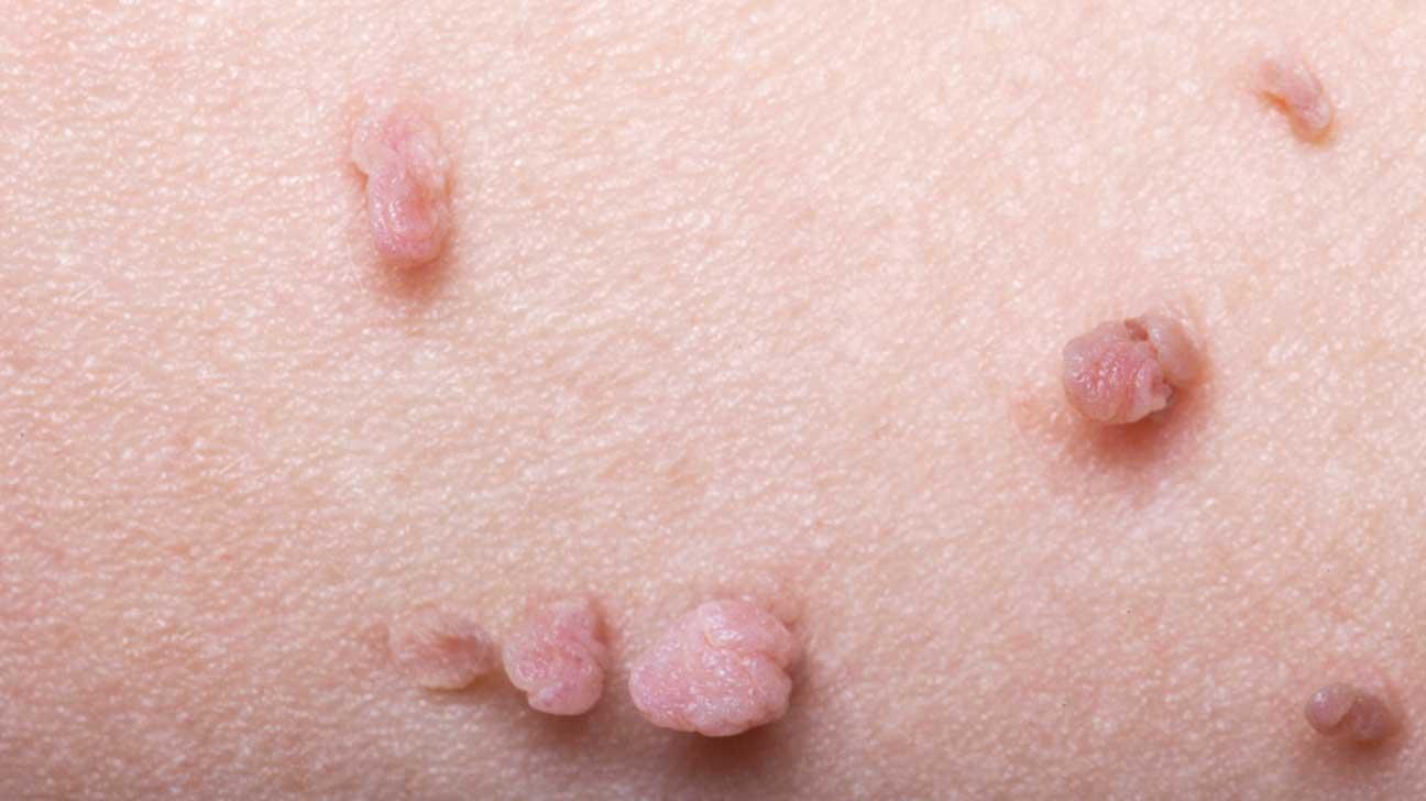 warts skin growths