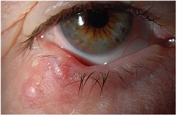 cell papilloma eyelid human papillomavirus vaccine during pregnancy