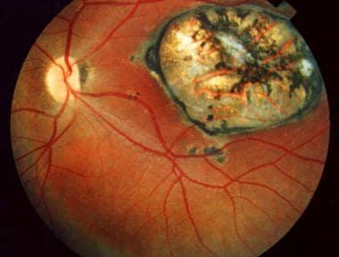 parazitoze oculare hpv warts statistics