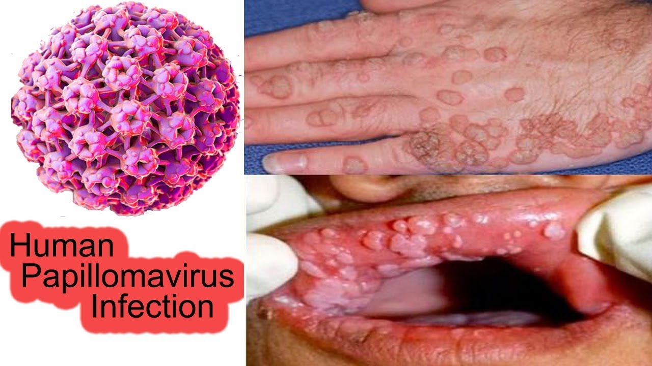 papillomavirus gorge traitement cancerul de colon primele simptome