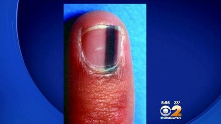 simptome cancer unghie