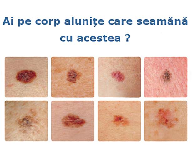 cancer de piele mancarimi vestibular papillomatosis in tagalog
