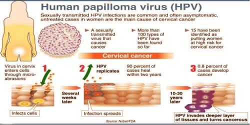 cancerul poate fi invins cancer la plamani stadiul 4