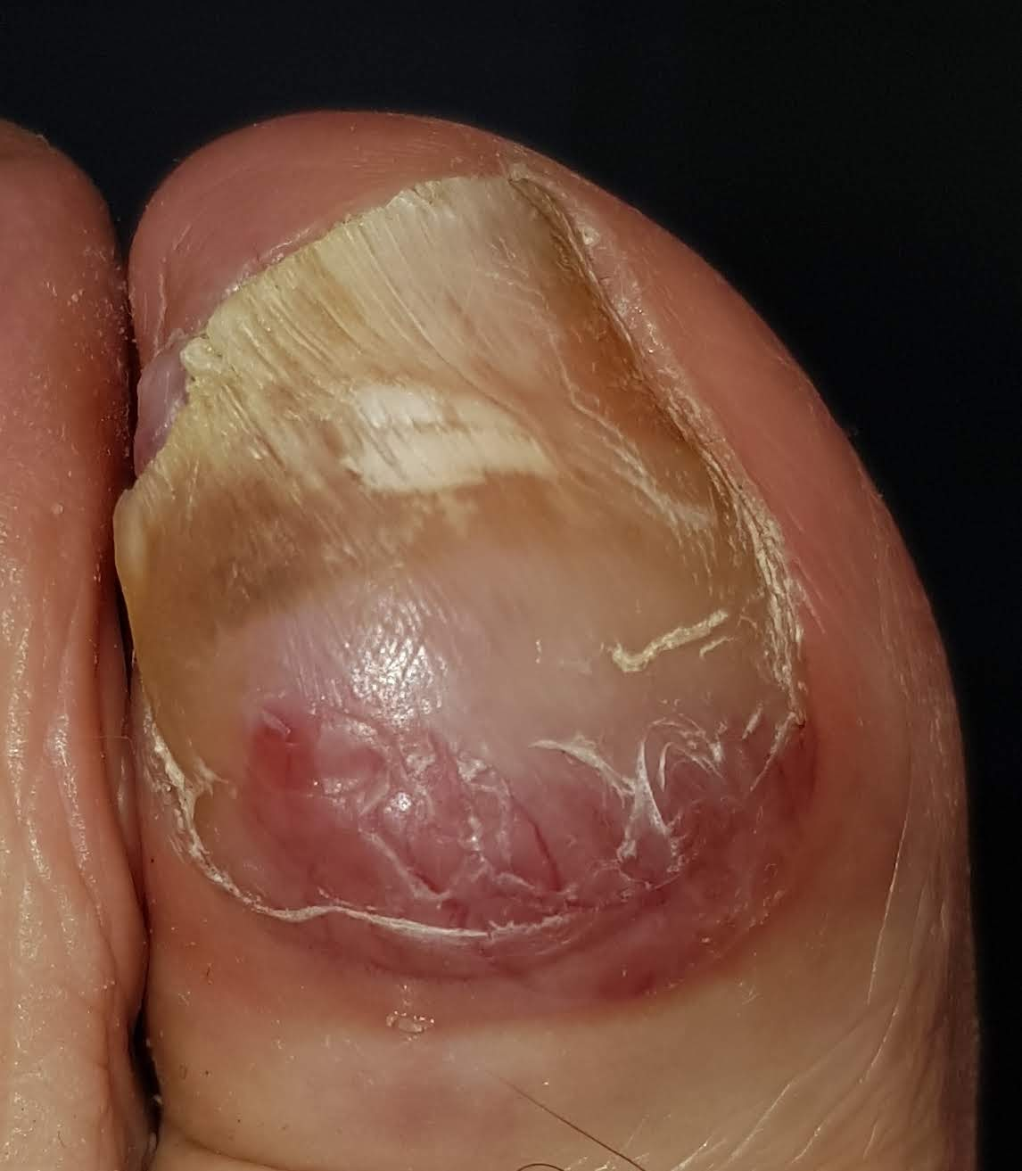 papiloma plantar cancer