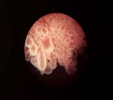 papillary urothelial carcinoma medscape reticulated papillomatosis histology