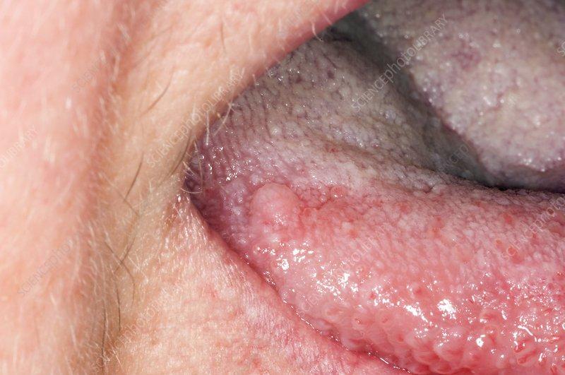 que hacer cuando tengo oxiuros nasal papilloma histopathology