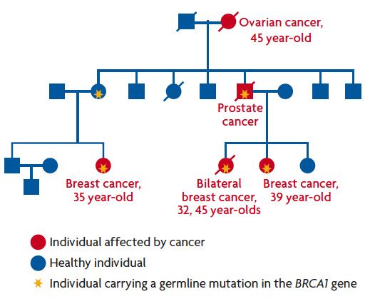 cancer familial aggregation choroid plexus papilloma icd 10