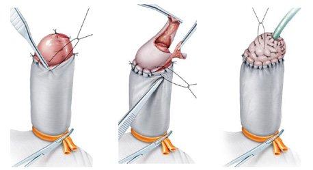 hpv 16 and penile cancer ce e cancerul cervical