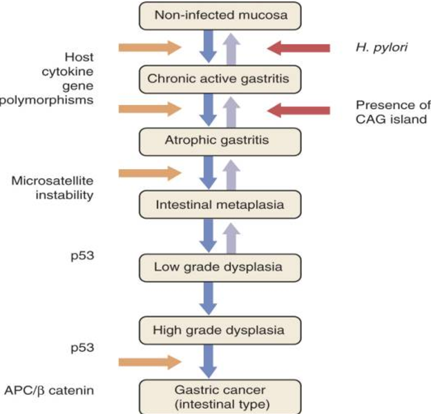 gastric cancer pathophysiology cancer ovarian stadiul 4 speranta de viata