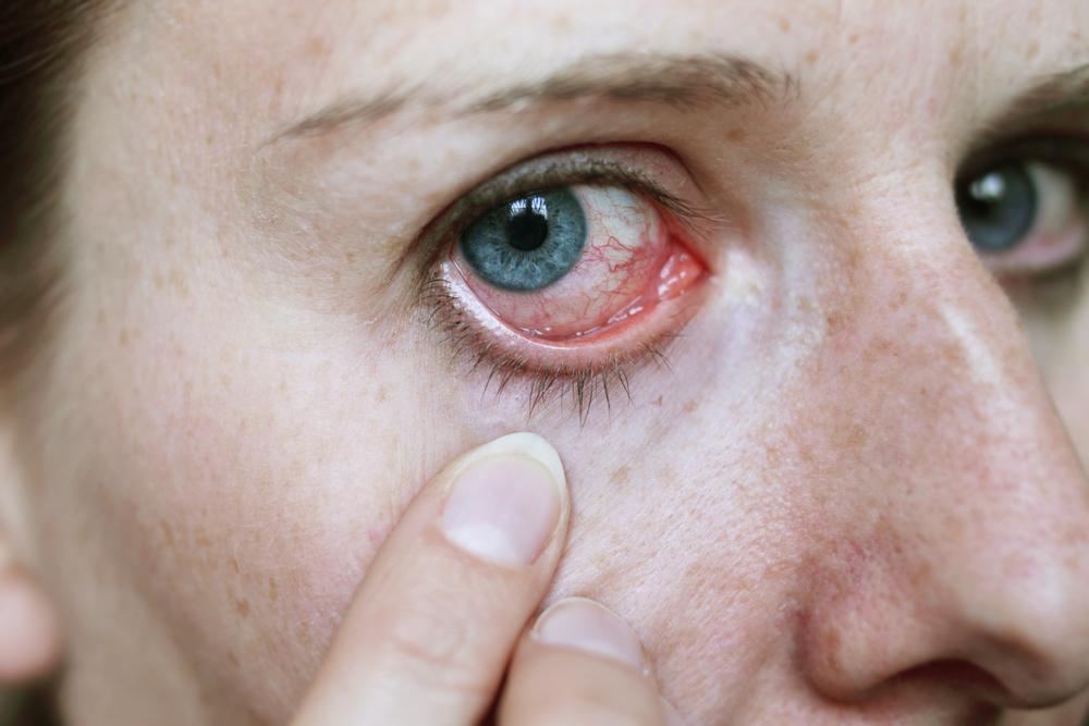 parazitoze oculare