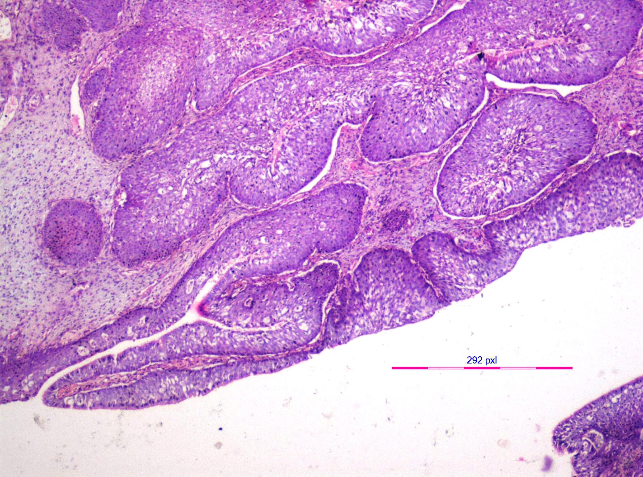 keratinizing squamous papilloma cancer ala faringe