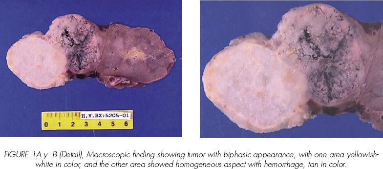 cancer renal cromofobo