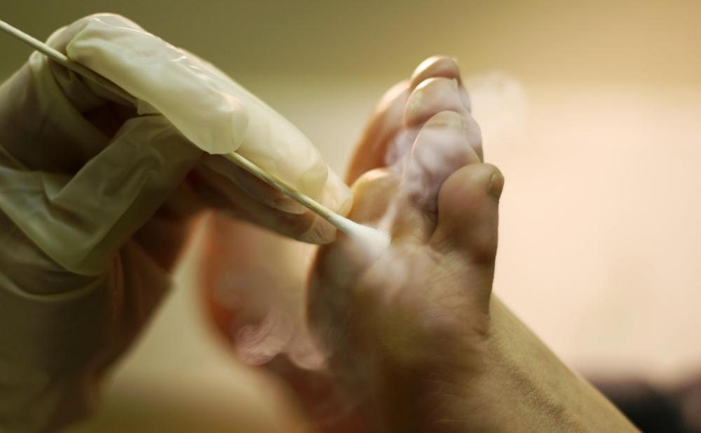 squamous papilloma leg