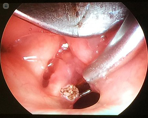 laryngeal papillomatosis operation
