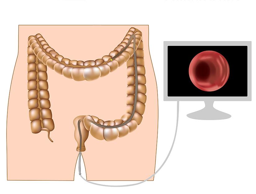 cancer de colon se poate trata parazitii orice ar fi