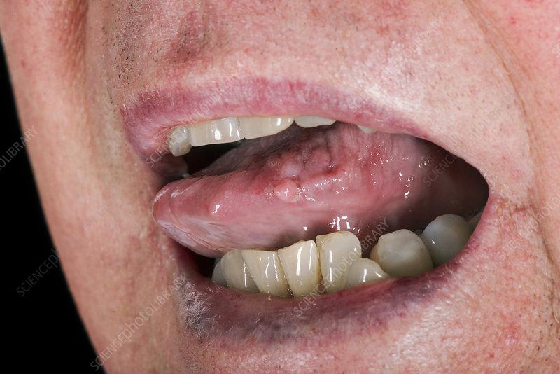 hpv wart in throat