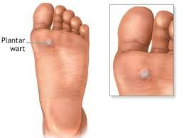 wart treatment los angeles