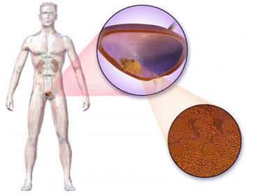 cancer vezica urinara operatie