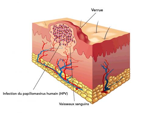 papillomavirus verrues plantaires hpv que es como se transmite