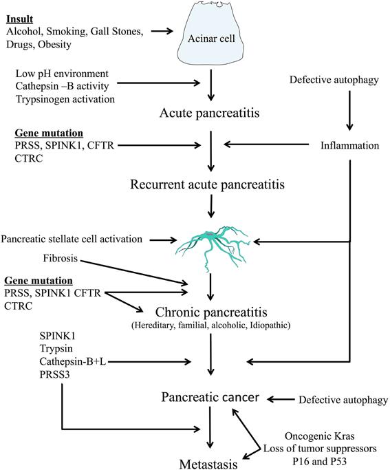 pancreatic cancer pathophysiology virus papiloma humano en hombres es curable