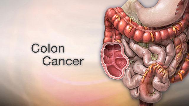 colon cancer abdominal lump