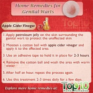 wart treatment laser nasal papilloma home treatment