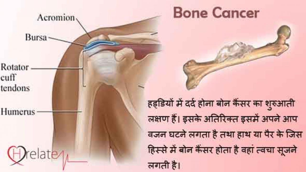 sarcoma cancer in hindi