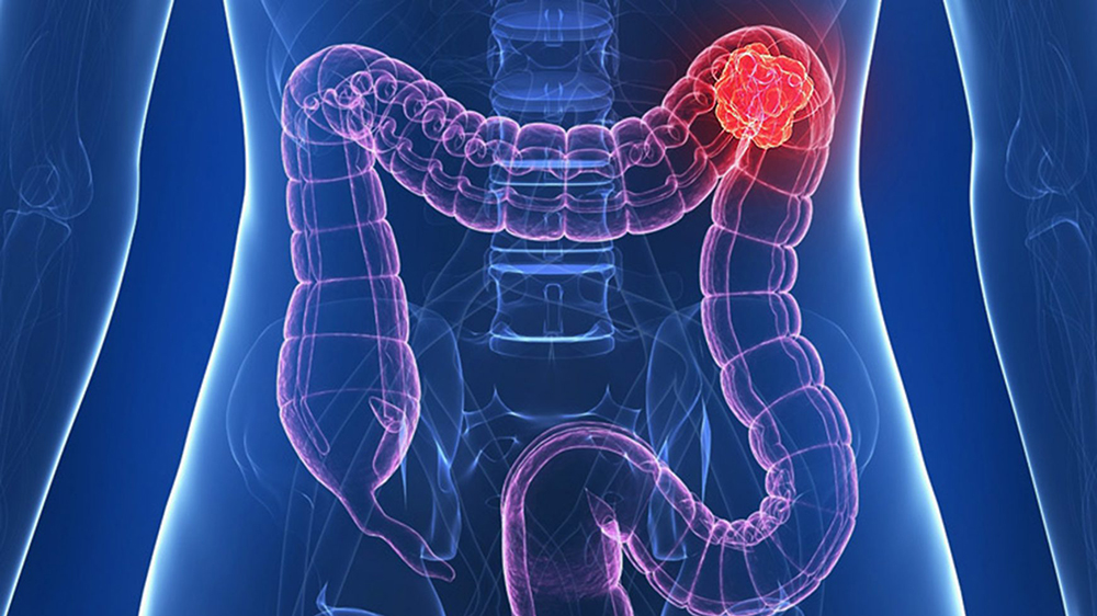 cancer de colon drept doare