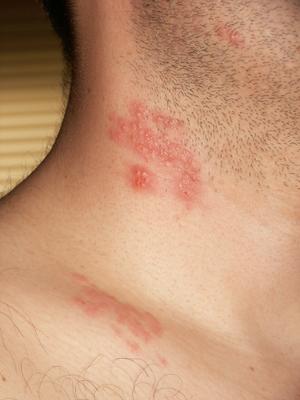 herpes genital y papiloma humano