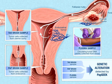 uterine cancer or perimenopause ductal papilloma and breast cancer