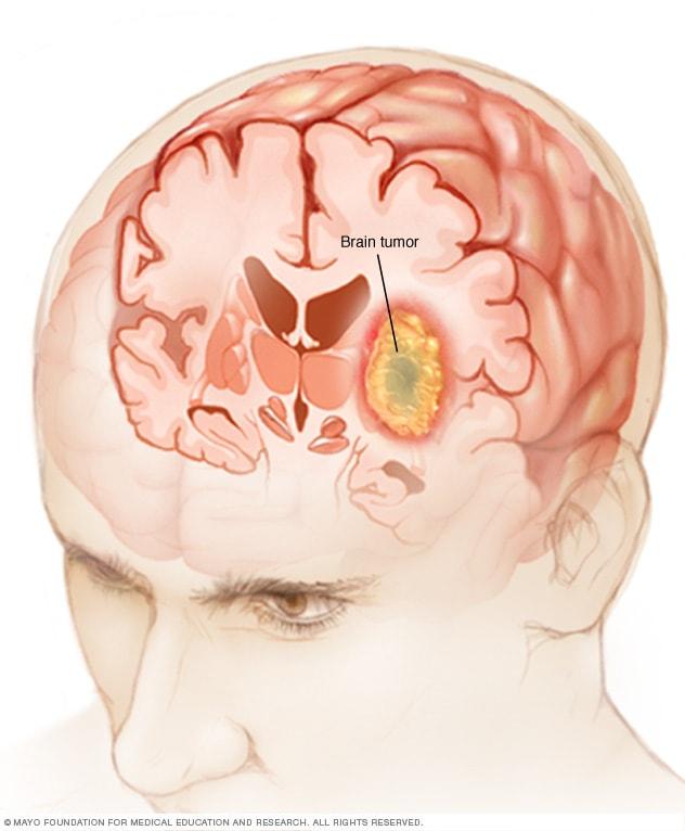 cancer cerebral definicion