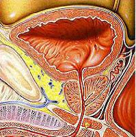 papillomavirus cancer gorge homme condyloma acuminata in hindi