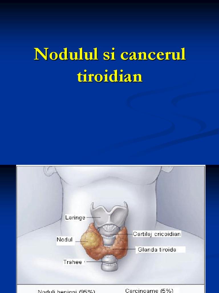 cancerul tiroidian folicular