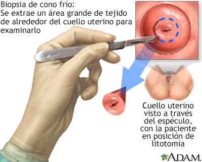 virus del papiloma biopsia hpv in italy