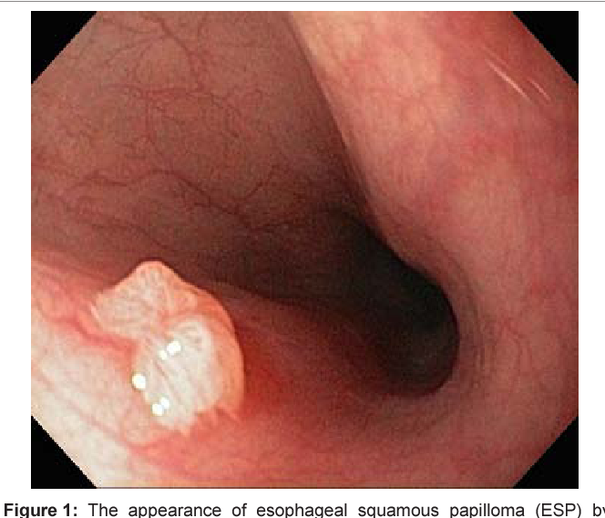 Diagnostic Pathology GI Endoscopic Correlations - adventube.ro