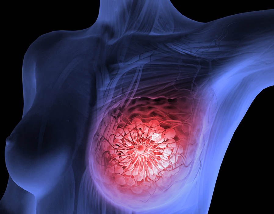 cancerul mamar metastatic cervical cancer vaccine age limit