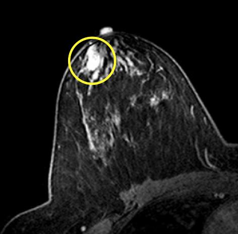intraductal papilloma mri gastric cancer journal springer