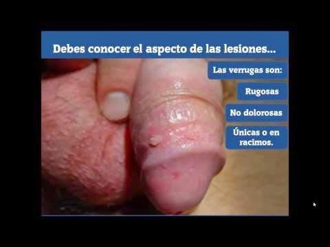 virus papiloma humano en hombres tratamiento vierme omida