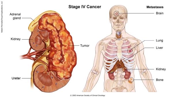 renal cancer in bones