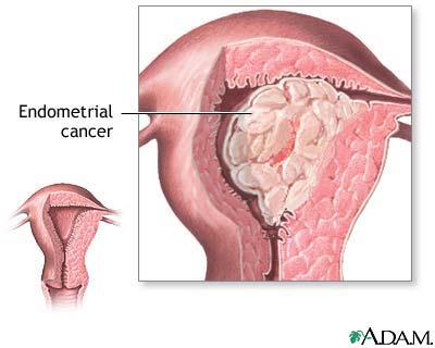 cancerul de uter se vindeca