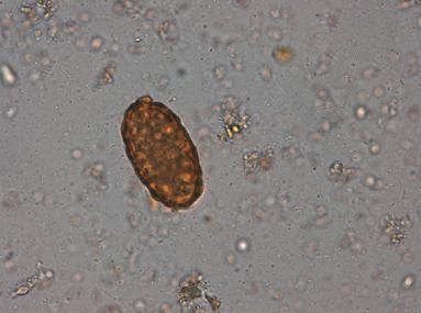 paraziti ascaris tratament