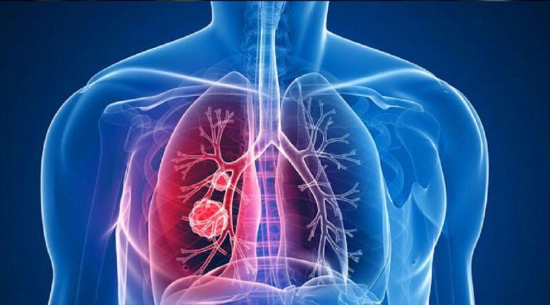 cancerul pulmonar la nefumatori papillomatosis epidermis